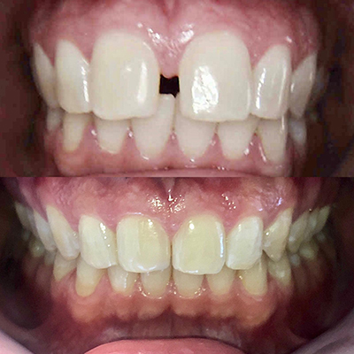 invisalign-before-and-after